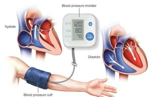 Hypertension: Children are not exempted, Nigerian Cardiac Society reveals