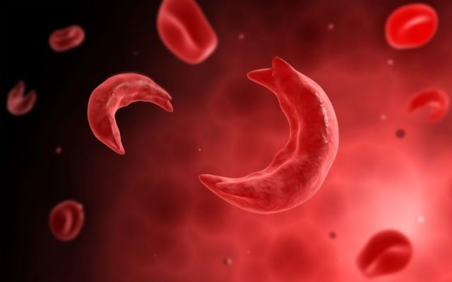 Nigeria has highest concentration of sickle cell patients -Prof. Osaghae