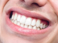 Dangers of poor oral health and simple solutions –Dentist